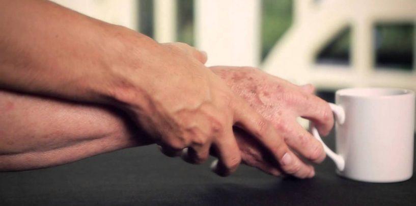 Caldo estivo, a correre i maggiori pericoli sono i malati di Parkinson