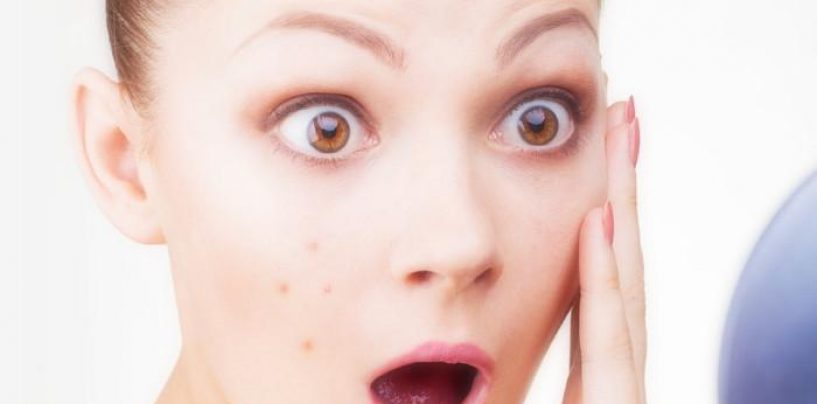 Crema anti-acne ritirata dalle farmacie, ecco i lotti