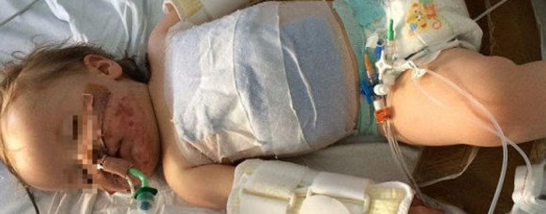 Bimbo di un anno beve acido: rischia la vita