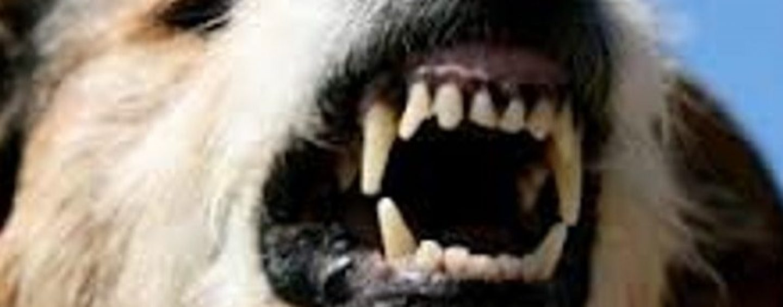 Baiano: donna aggredita da un cane randagio