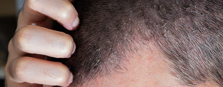 Dermatite seborroica e capelli: definizione, cause, sintomi e rimedi