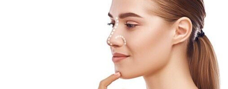 Rinoplastica: come scegliere la forma del naso? I consigli del dottor Rotondo