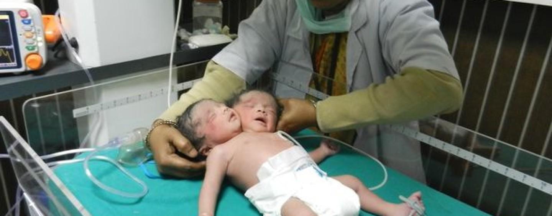 Nasce una bimba con due teste: tutti gli altri organi sono nella norma